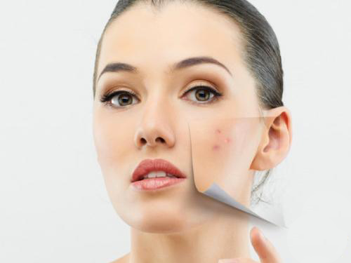 Acne Can Put a Damper on Hopes of Glowing Skin During Pregnancy | EDIZIONI  SCRIPTA MANENT PLANET
