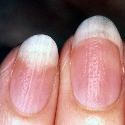 Псориаз ногти на руках